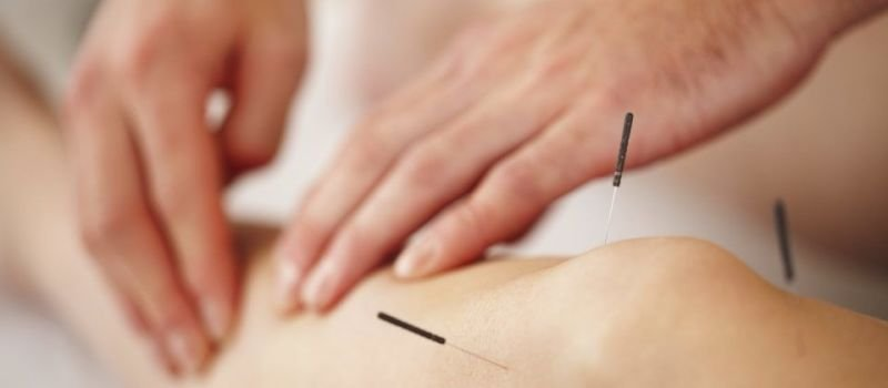 Application and Benefits of Acupuncture