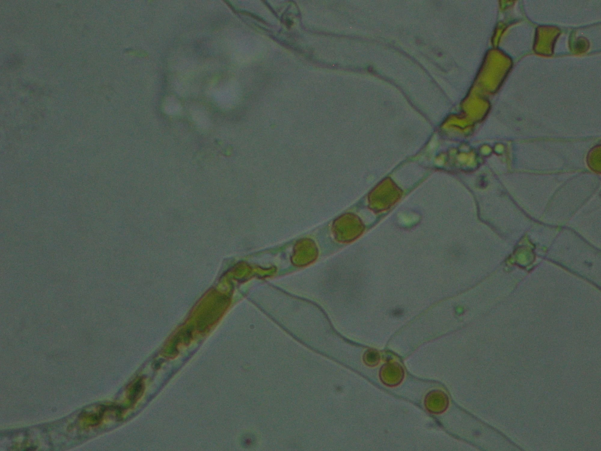 Blakeslea trispora beta-carotene deposits