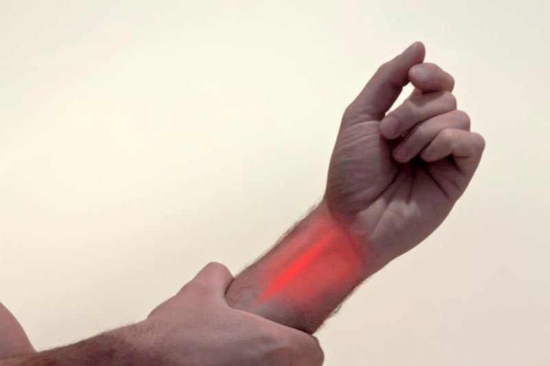 Carpal Tunnel Syndrome (Wrist Pain)