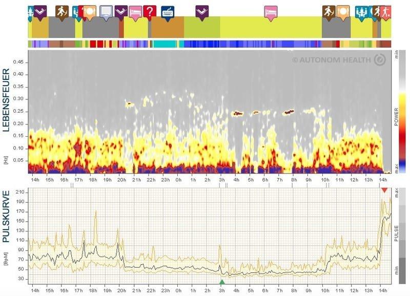 HRV-Analysen: für einsatzbereite und gesunde Mitarbeitende