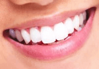 הלבנת שיניים