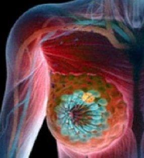 Chirurgie mamară şi ginecologică