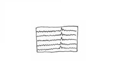 Klinisk nevrofysiologi/EEG