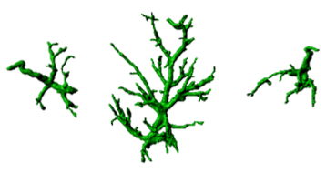 Reactive astrocytes in brain disorders