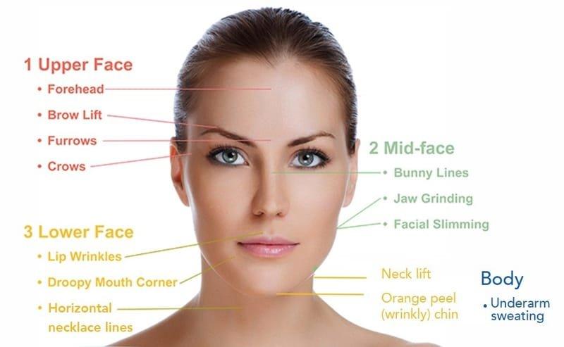 Botox (botulinum toxin) injections