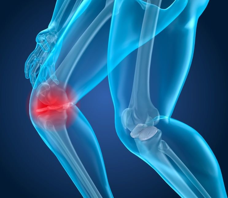 פציעות במיניסקוס