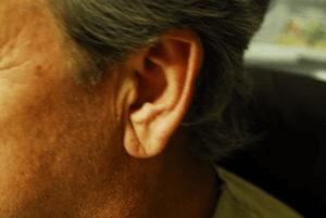 Ear Crease