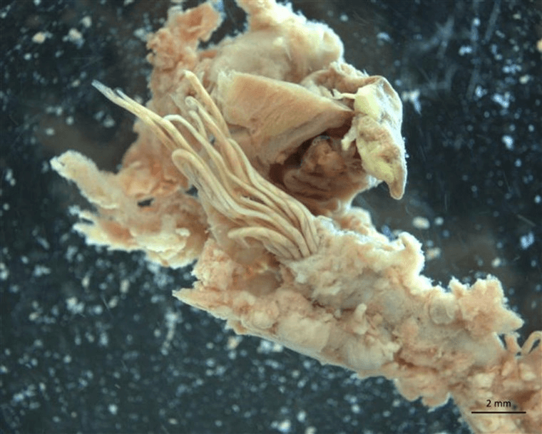 The noodle-like organisms in the center of this photo are adult rat lungworms emerging from the pulmonary artery of a rat.