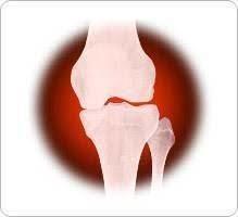 Arthrite et Arthrose
