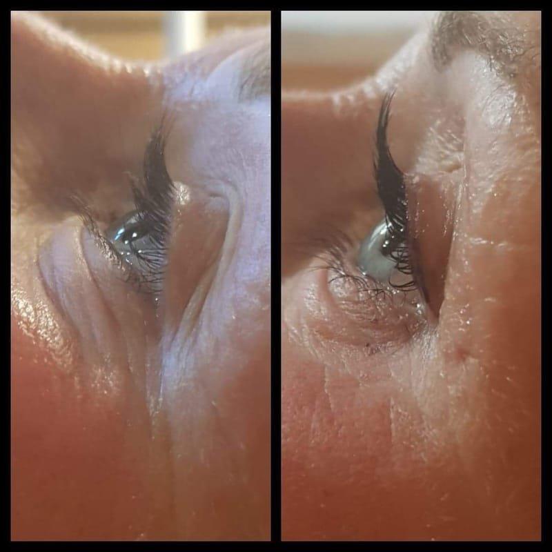 Eye treaments